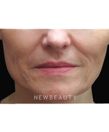 dr-jody-levine-injectables-fillers-b