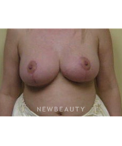 dr-beth-collins-breast-reduction-b