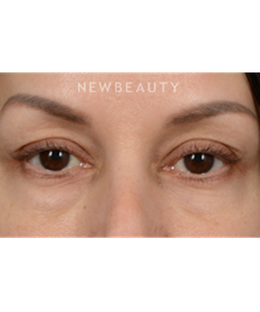 dr-jeffrey-wise-lower-blepharoplasty-b
