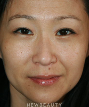 dr-john-kang-blepharoplasty-b