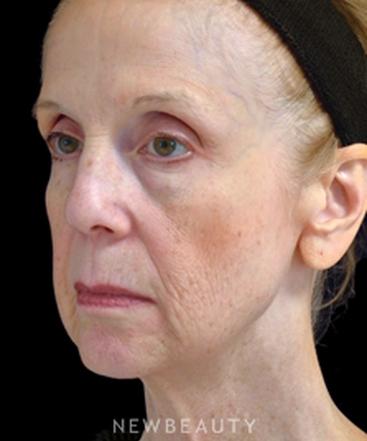 dr-cynthia-poulos-facial-rejuvenation-b