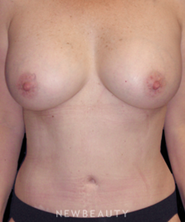dr-carmen-kavali-breast-augmentation-implants-liposuction-mommy-makeover-tummy-tuck-b