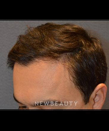 dr-natalir-attenello-hair-transplant-b