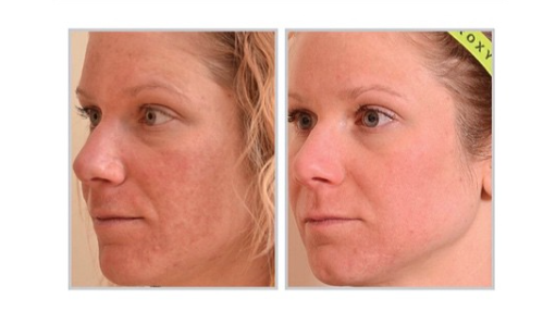 discoloration Facial skin