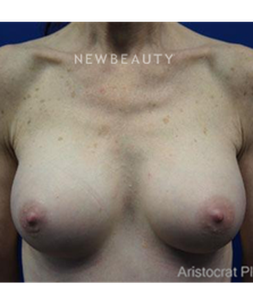dr-kevin-tehrani-silicone-breast-implants-b