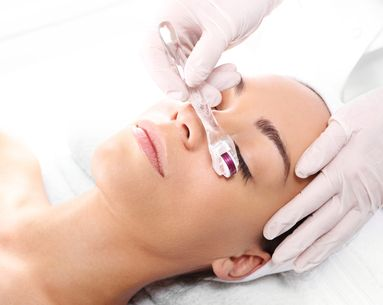 How Microneedling is Getting Even More Effective