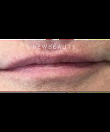 dr-kim-nichols-lip-filler-b