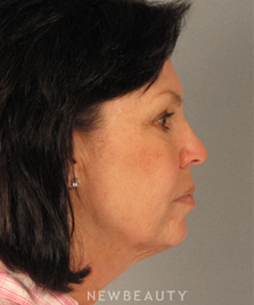 dr-mentz-facelift-necklift-b