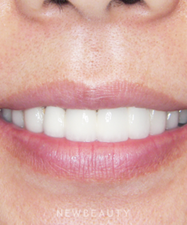 dr-jan-linhart-veneers-crowns-b