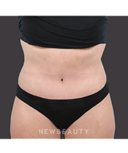 dr-bradley-bengtson-liposuction-tummy-tuck-b