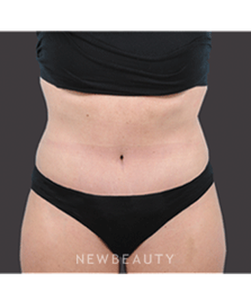 dr-bradley-bengtson-liposuction-tummy-tuck-b