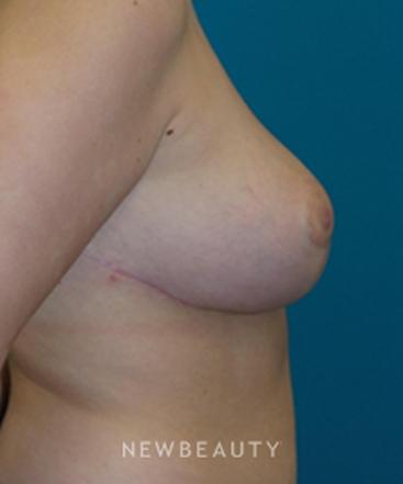 dr-adam-hamawy-breast-reduction-b