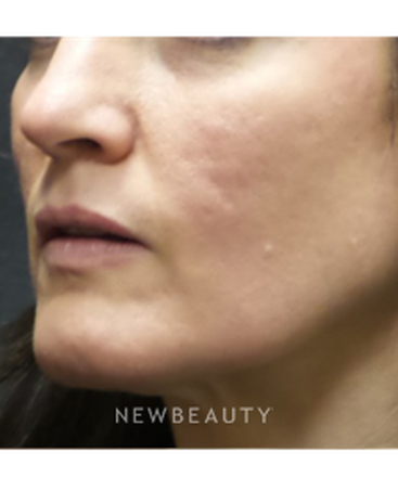 dr-jody-levine-acne-scars-b