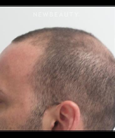 dr-marina-peredo-hair-loss-treatment-b