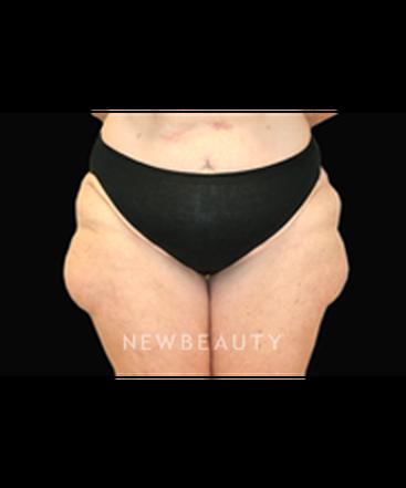 dr-jack-hensel-liposuction-b