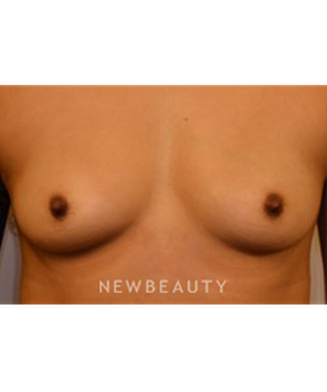 dr-jeffrey-yager-breast-augmentation-b