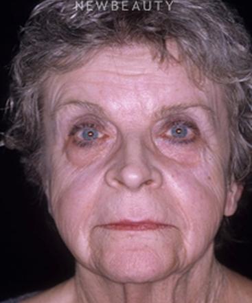 dr-charles-e-crutchfield-botox-b