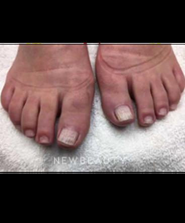 dr-ann-c-zedlitz-toe-nail-fungus-b