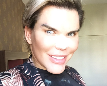 Human Ken Doll Just Got New Veneers and Here's What You Need to Know About Them