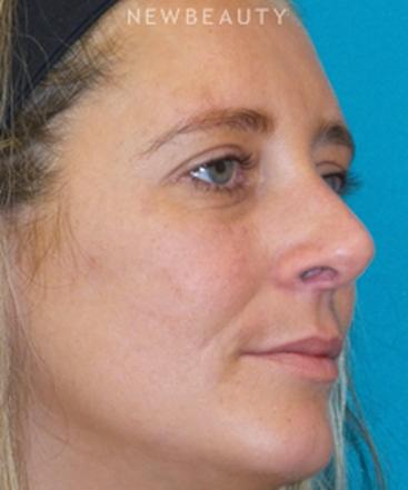 dr-adam-hamawy-contoured-nose-b