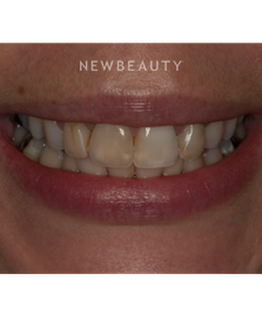 dr-elizabeth-l-lowery-crowns-veneers-b