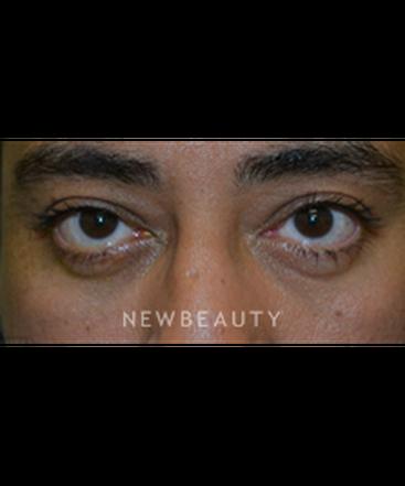 dr-baljeet-k-purewal-blepharoplasty-b