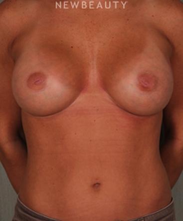 dr-benjamin-schlechter-breast-implants-b