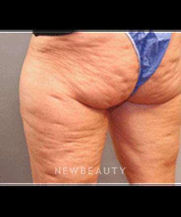 dr-jack-hensel-cellulite-treatment-b