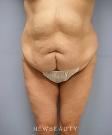dr-linda-l-swanson-tummy-tuck-b