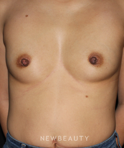 dr-david-boudreault-breast-augmentation-b