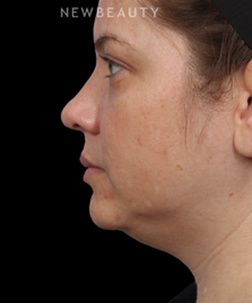 dr-kathleen-behr-double-chin-reduction-b