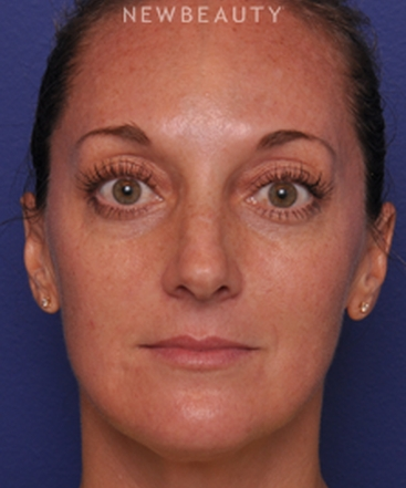 dr-alan-j-durkin-injectables-and-fillers-b