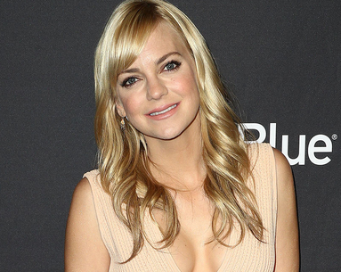 Anna Faris Says This Plastic Surgery Procedure Was 'F—ing Awesome'