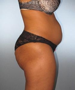 dr-german-newall-feminine-rejuvenation-b