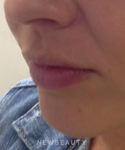 dr-ingrid-warmuth-juvederm-b