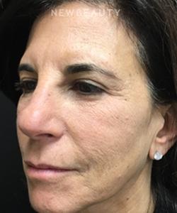 dr-mokhtar-asaadi-blepharoplasties-and-kybella-b