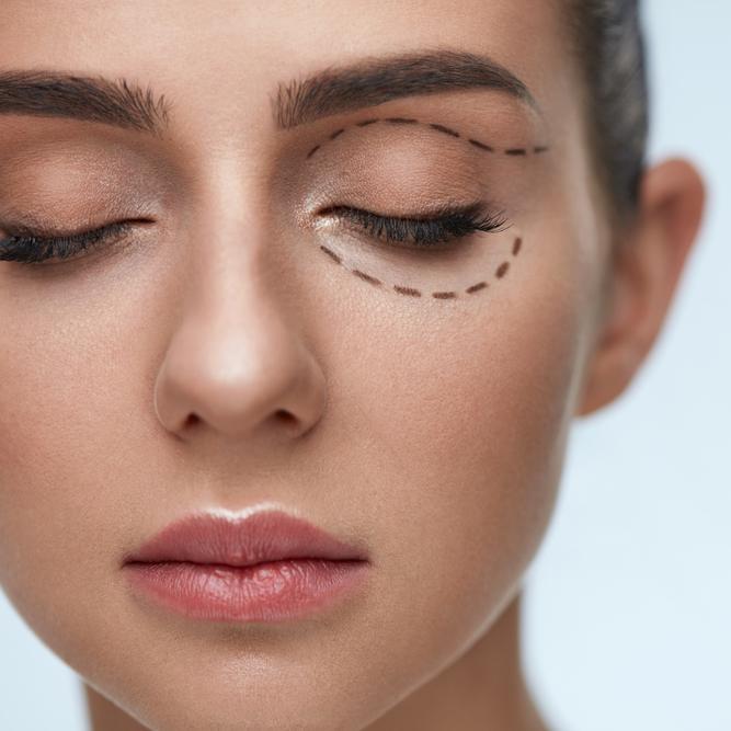 Blepharoplasty Eyelift Plastic Surgery - NewBeauty
