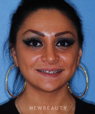 dr-kourosh-maddahi-smile-makeover-b