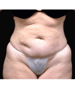dr-andrew-smith-tummy-tuck-liposuction-b