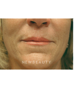 dr-kenneth-beer-injectables-fillers-b