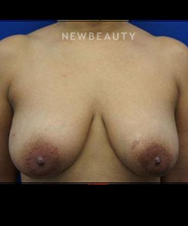 dr-kevin-tehrani-bilateral-mastopexy-b