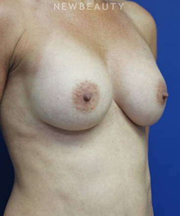 dr-joseph-russo-natural-looking-results-breast-ebg-b