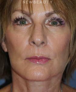 dr-brent-smith-facelift-with-fat-transfer-b