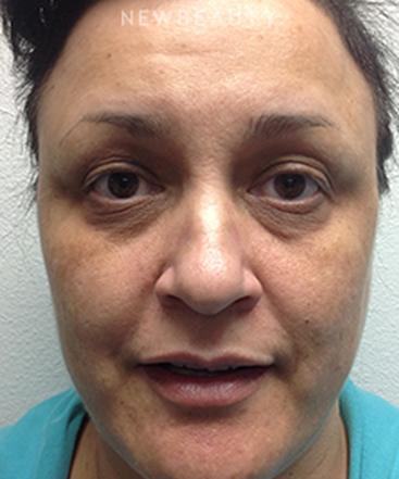 dr-steven-l-swengel-facial-rejuvenation-b