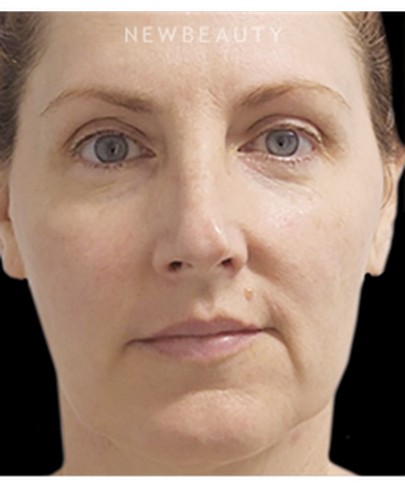 dr-marina-peredo-nonsurgical-lifting-and-tightening-b