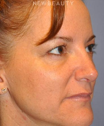 dr-bryan-w-gawley-revision-rhinoplasty-b