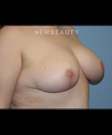 dr-james-romanelli-breast-reduction-b