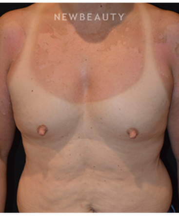 dr-cynthia-m-poulos-breast-implants-b