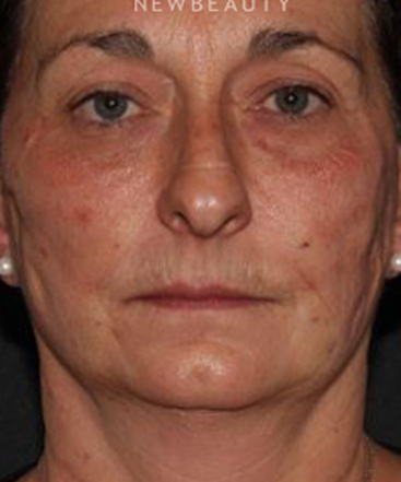 dr-quenby-erickson-injectables-fillers-b