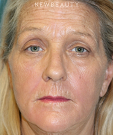 dr-christine-hamori-full-facelift-b